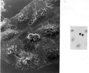 HeLa cells dividing under electron microscopy. Credit: NIH