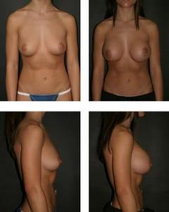Bilateral saline breast implants, before (l) and after. Credit: Otto J. Placik
