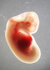 Sheep embryo with human cells