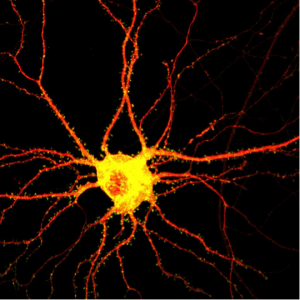 Yeast may help scientists study diseases that destroy brain cells such as this one. Credit: MIT
